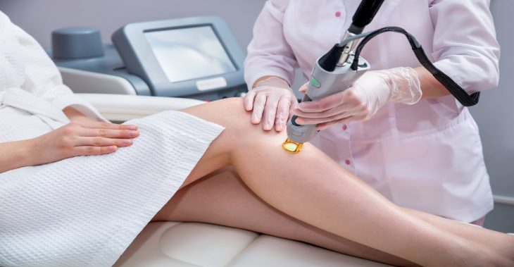 How Safe is Laser Hair Removal?